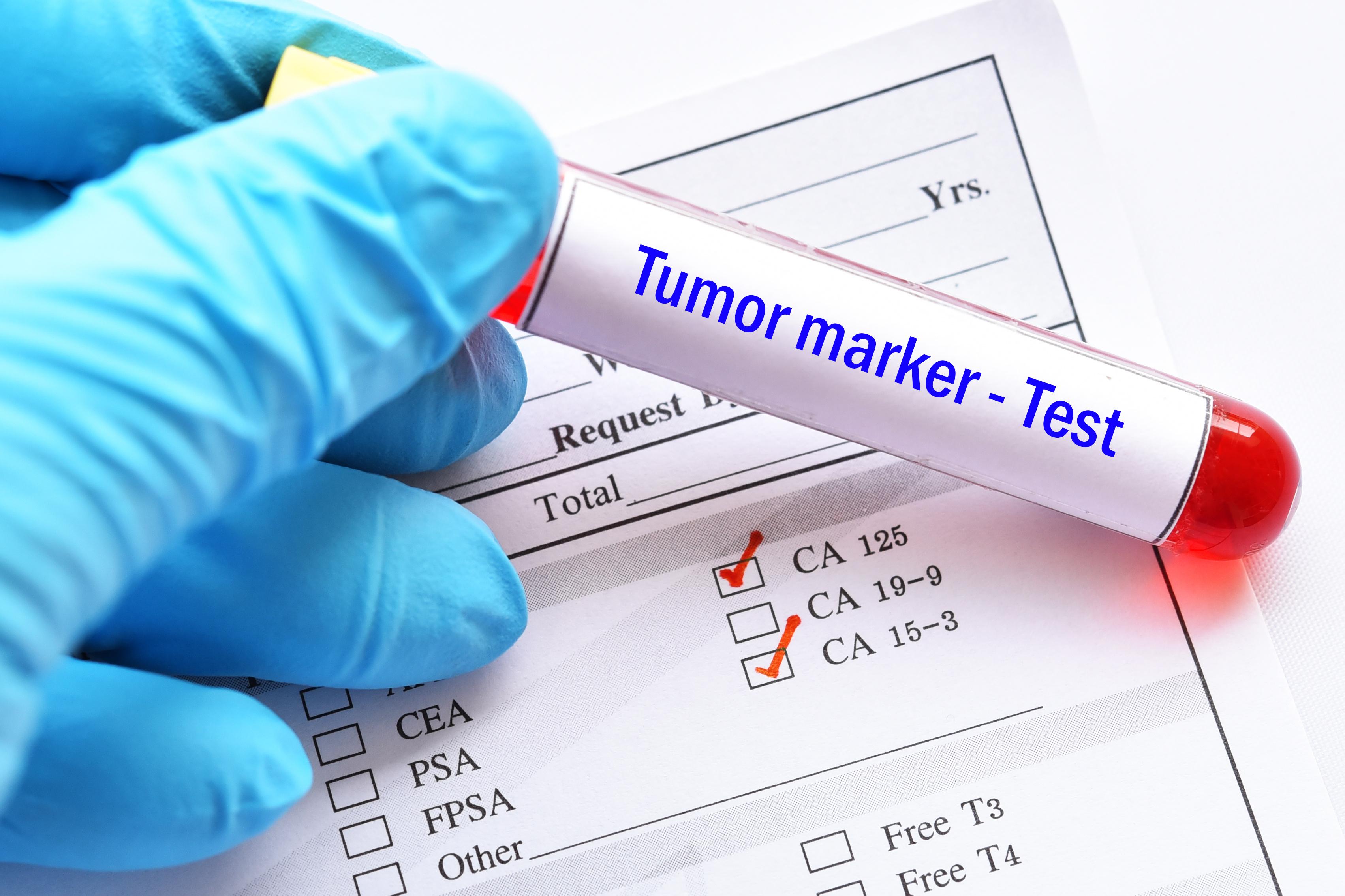 腫瘍マーカー