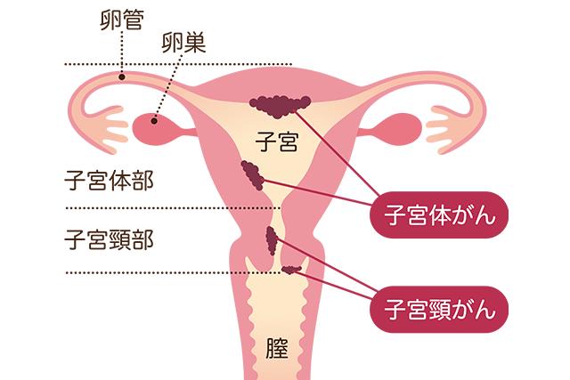 子宮 内 膜 症 原因 やりすぎ