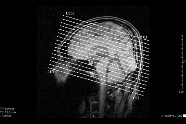 MRI(Magnetic Resonance Imaging)とは細胞組織の動きを把握する画像撮影検査のこと
