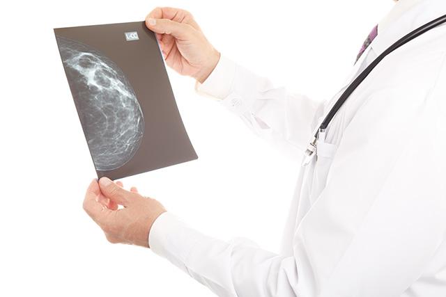 乳がん検診イメージ