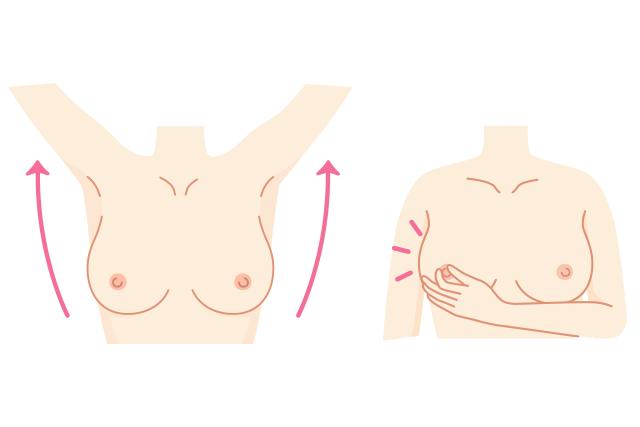 乳がんのセルフチェック1:鏡の前で左右の乳房を見る。乳頭(乳首)を軽くつまんで乳頭分泌物がないかも確認を。